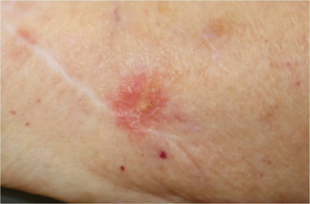 skin melanoma pictures #10